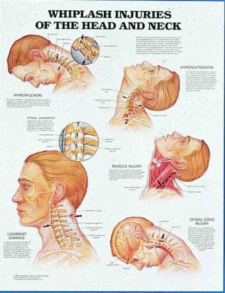 Education Scientific Products Whiplash Injuries Of The