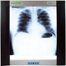 X-Ray Viewers