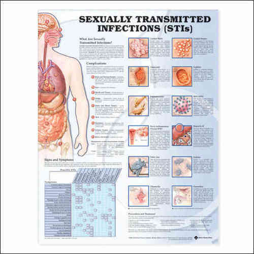 Education Scientific Products  -  Sexualy Transmitted Infections