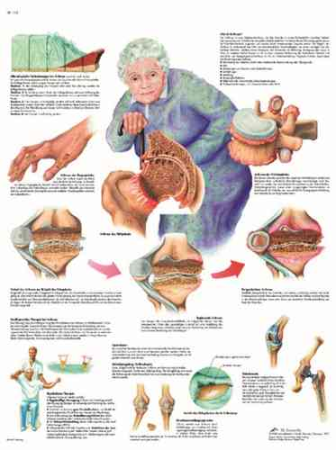 UK 3B Laminated Anatomical Wall Chart - Arthritis