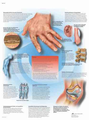 UK 3B Laminated Anatomical Wall Chart - Rheumatic Diseases