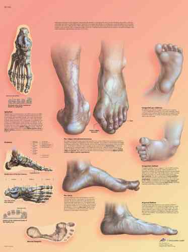 UK 3B Laminated Anatomical Wall Chart - Deformities of the Feet