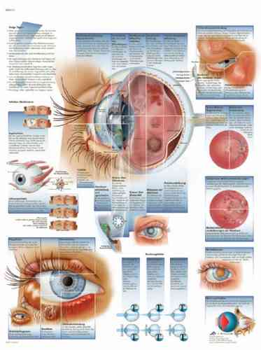 UK 3B Laminated Anatomical Wall Chart - Diseases of the Eye