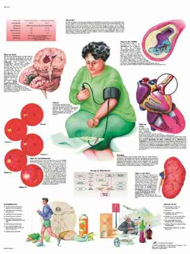 UK 3B Laminated Anatomical Wall Chart - Hypertension