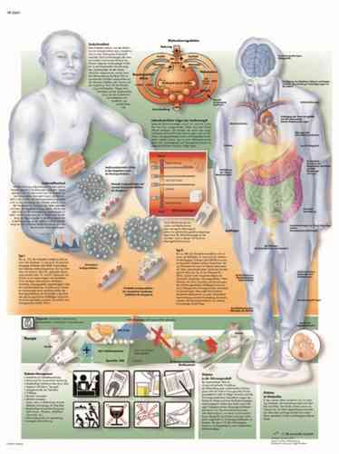 UK 3B Laminated Anatomical Wall Chart - Diabetes Mellitus