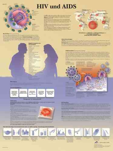 UK 3B Laminated Anatomical Wall Chart - HIV and AIDS