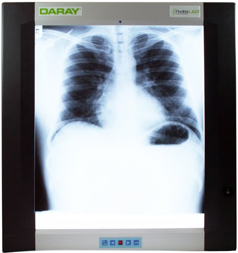 DARAY DX4101LED Single X-ray viewer